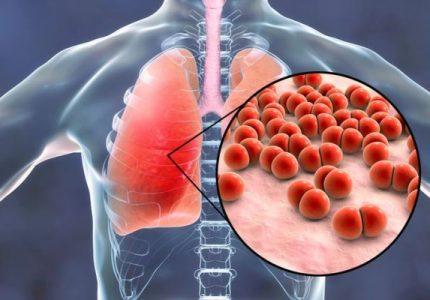 Hal yang Harus Anda Ketahui Tentang Pneumonia (Radang Paru-paru)