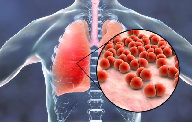6 Hal yang Harus Anda Ketahui Tentang Pneumonia (Radang Paru-paru)